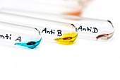 Blood group test, AB Rh positive