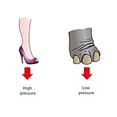 Pressure exerted by stiletto heel and elephant's foot, illus