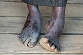 Club foot of a Malagasy woman.