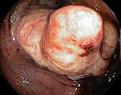 Colon cancer, endoscope view
