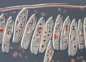 Paramecium ciliates, light micrograph