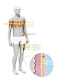 Radiation effects on humans, illustration