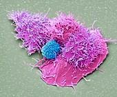 Natural killer cell and cancer cell, SEM