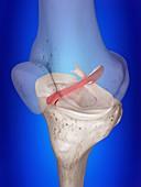 Illustration of the anterior cruciate ligament