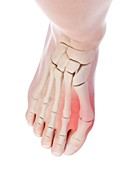 Illustration of a bunion