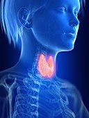 Illustration of an inflamed thyroid