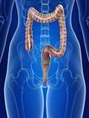 Illustration of a woman's colon