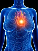 Illustration of a woman's inflamed heart