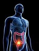 Illustration of a man's colon tumour