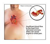 Coronary Artery Plaque Causing Angina