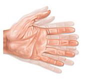 Hand Tremors, Illustration