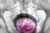 Prostatic adenoma, X-ray