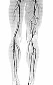 Atherosclerosis, CT angiogram