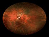 Bilateral Melanosis of Eye