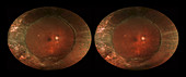 Scleral Buckle, stereo image