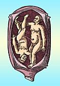 Abnormal Fetal Presentation, 16th Century