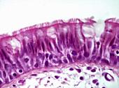 Tracheal mucosa, LM