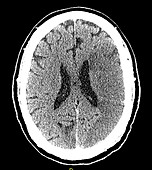 CT of Early Stroke