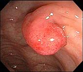 Adenomatous Colon Polyp on Stalk