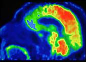 Brain, PET Scan, Psychopath