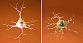 Normal and Dying Neuron, Alzheimer's Disease