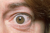 Graves' Ophthalmopathy
