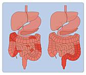 Crohn's Disease & Ulcerative Colitis, Comparison