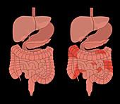 Healthy Digestive System & Crohn's, Comparison