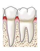 Gingivitis & Plaque, Side View, Illustration