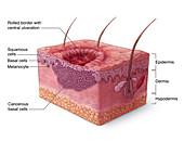 Basal Cell Carcinoma Illustration