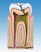 Dental Cavity and Abscess, Illustration