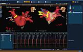 Cardiac Ablation, 3D image map