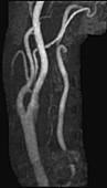 Mild LT ICA Stenosis, MRA