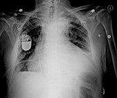 Post mediastinal hematoma, X-ray