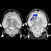Targeted nanochains in brain cancer, MRI scans