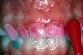 Dental Plaque, Red Disclosing Dye