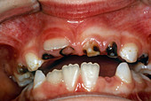 Severe Tooth Decay in Child