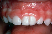 Twinned Tooth