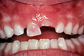 Pink Discolouration of Primary Tooth