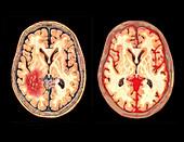 Brain, subarachnoid haemorrhage, subdural hematoma