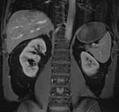 Normal spleen, MRI
