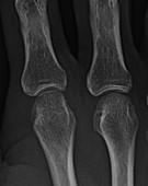 Metacarpal head erosion, X-ray
