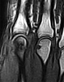 Metacarpal head erosion, MRI