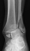 Ankle fracture, X-ray