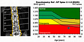 Osteoporosis, X-ray bone densitometry