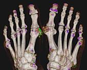 Gout, 3D CT scan
