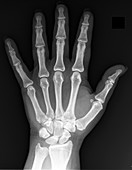 Normal hand, X-ray