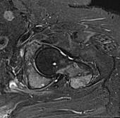 Metastases in hip, MRI