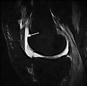 Lipohemarthrosis, MRI