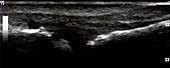 Erosion of metatarsal head, ultrasound